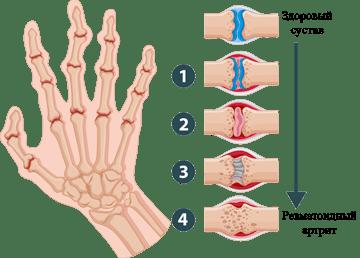 Ревматоидный артрит пальцев лечение thumbnail