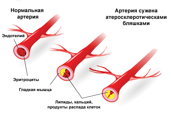 Прибор измерения уровня холестерина в крови