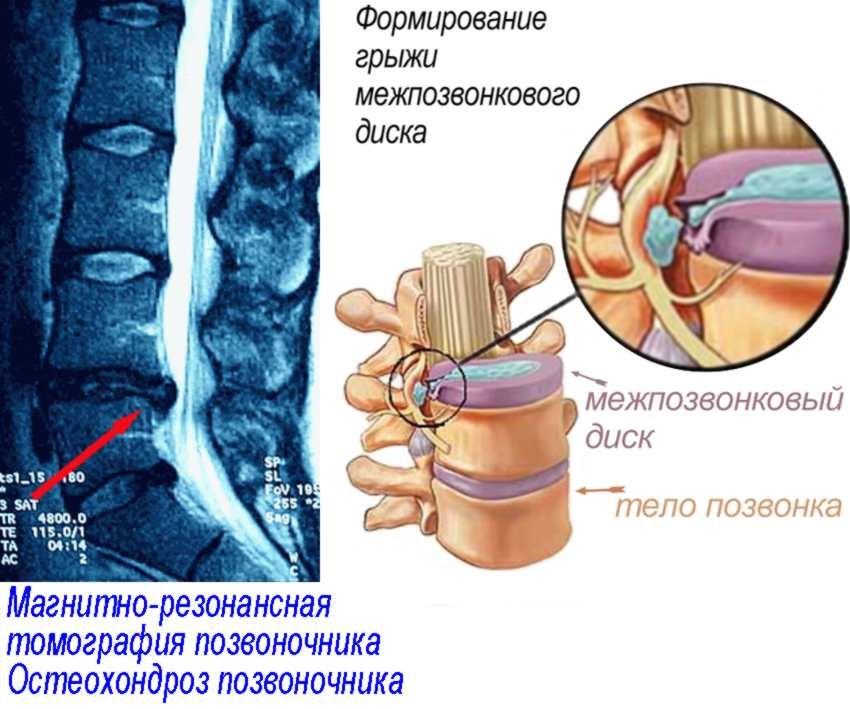 Признаки грудного остеохондроза