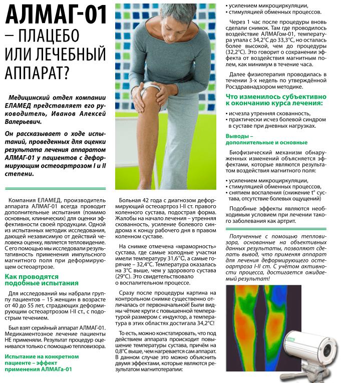 Артроз коленного сустава лечение аппаратами елабужского завода мазь для спины беременным
