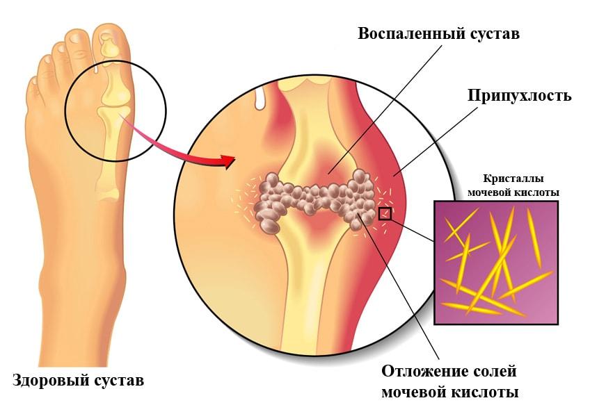 Заболеваний суставов необходимо соблюд японский аппарат лечения коленного сустава