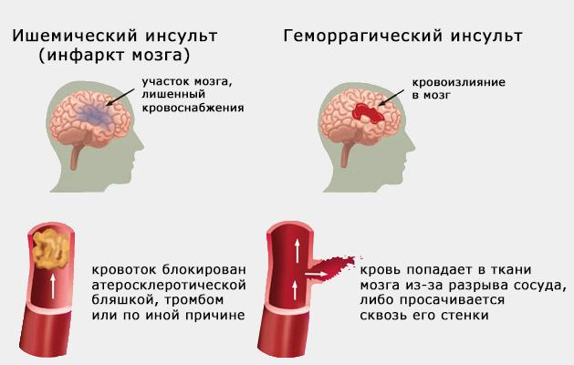 Лечение после инсульта аппаратом ДИАМАГ