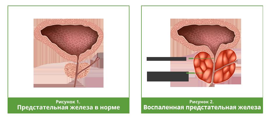 Вакуумная помпа в лечении простатита