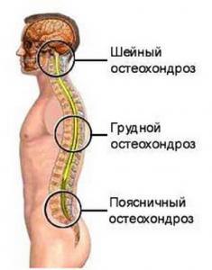 Остехондроз