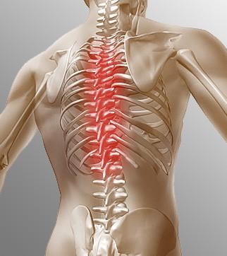Грудной остеохондроз – что это? Его признаки и лечение