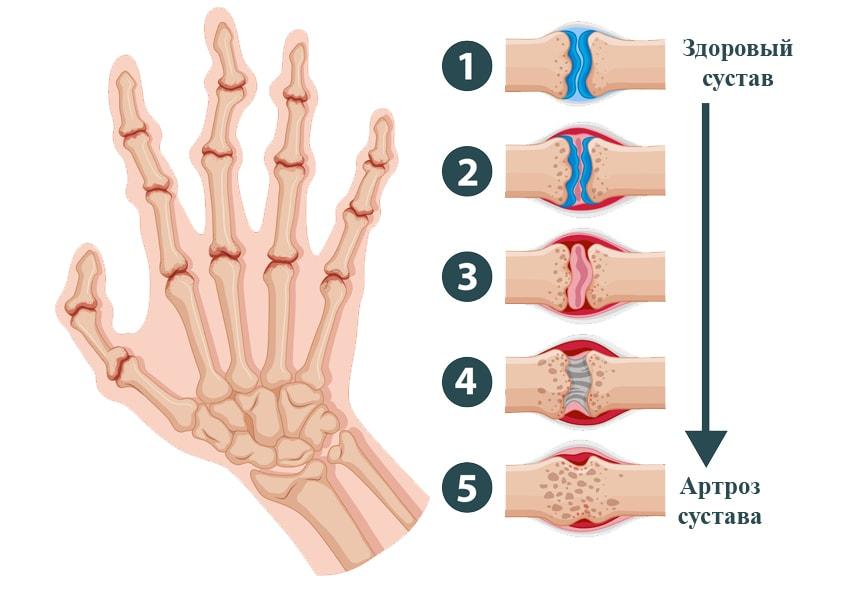 Артроз плечевого сустава лечение народными методами