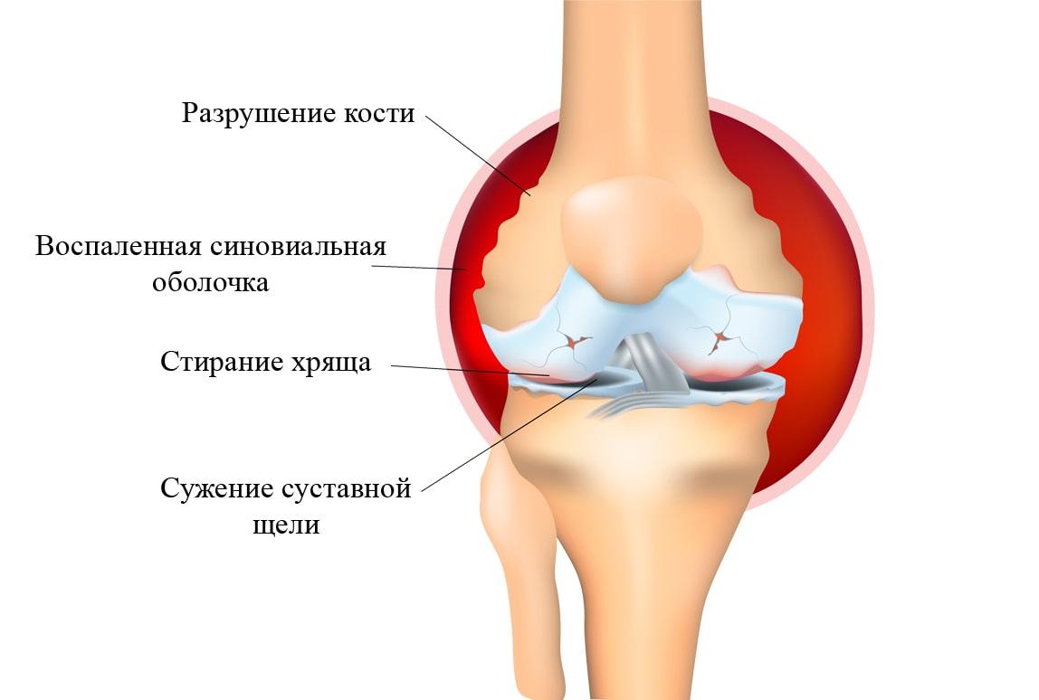 Рассеянный хондроз симптомы и лечение