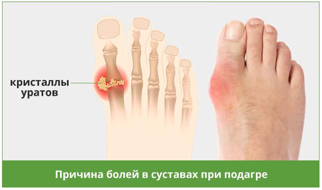 Препараты при лечении остеопороза