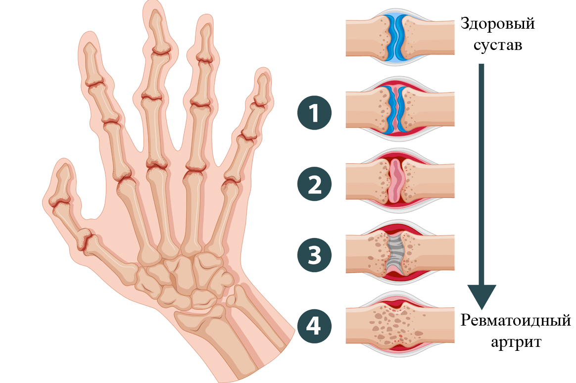 Реактивный артрит тазобедренного сустава симптомы и лечение у детей