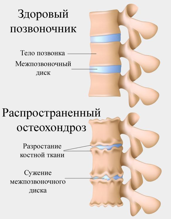 Болит шея спереди при движении