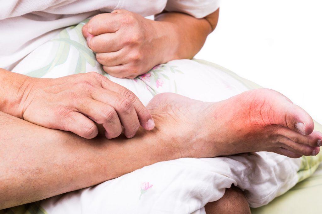 Подагра у мужчин: признаки, причины и лечение